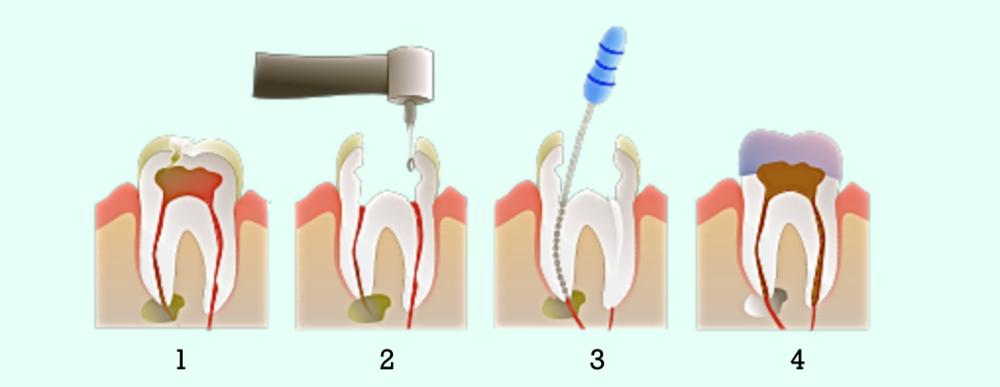 Yonsei E-Zone Dental Seoul Cavity Care