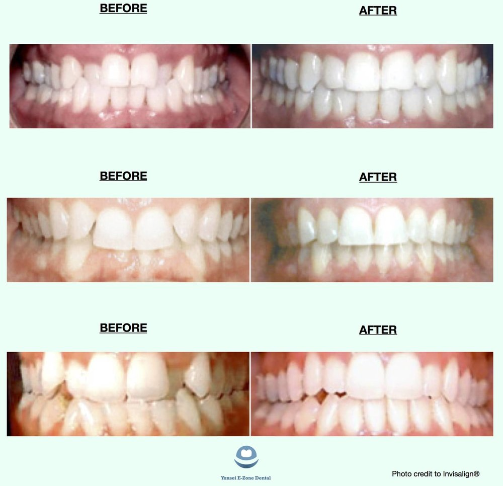 Yonsei EZone Dental Seoul Invisalign Before and After.jpg