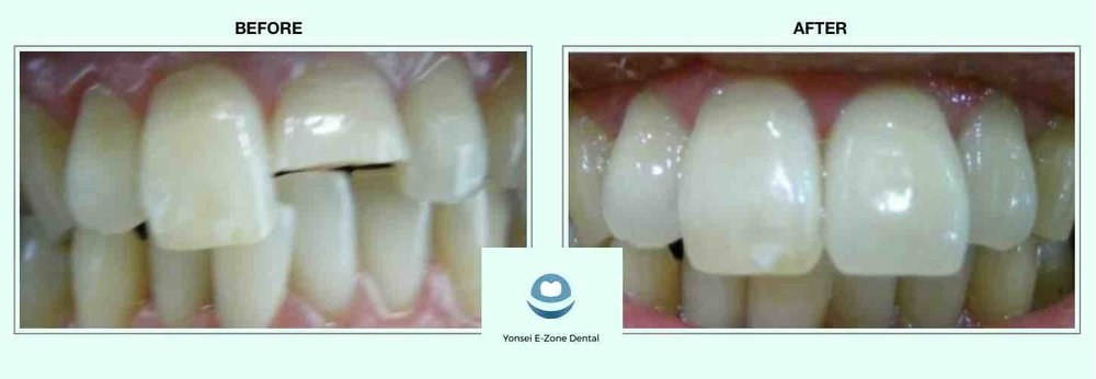 Yonsei E-Zone Dental before and after partial crown