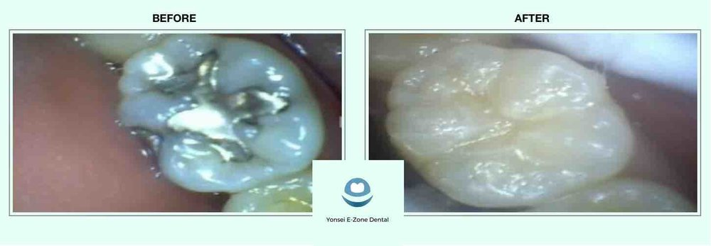Yonsei E-Zone Dental before and after ceramic inlay