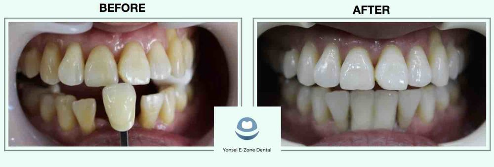 6Yonsei_E-Zone_Dental_Before&Afters_Implants2-min.jpg