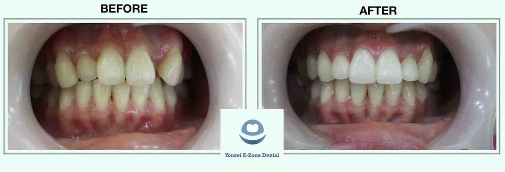1Yonsei_E-Zone_Dental_Before&Afters_Smile_Make-over_1.jpg