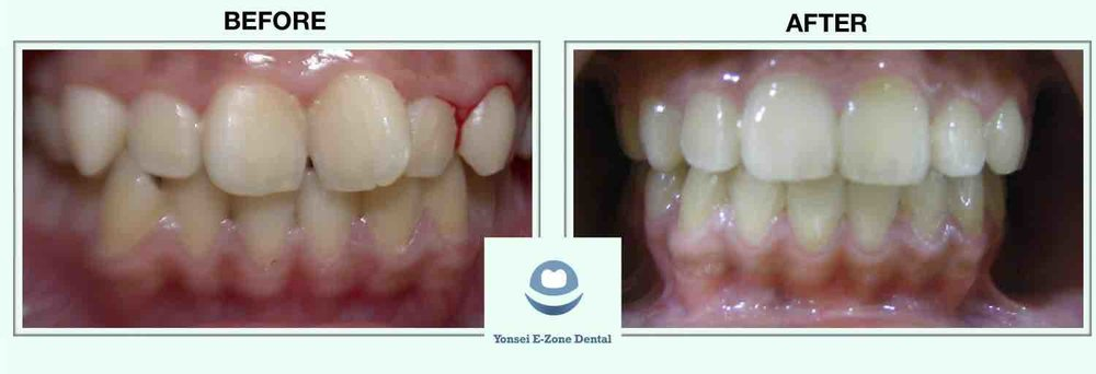 2Yonsei_E-Zone_Dental_Before&Afters_Smile_Make-over_2.jpg