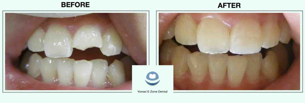 4Yonsei_E-Zone_Dental_Before&After_Resin.jpg