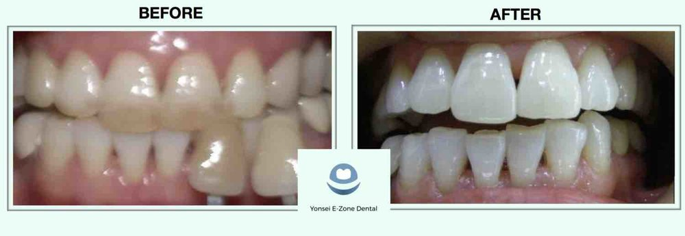 5Yonsei_E-Zone_Dental_Before&After_Teeth_Whitening.jpg