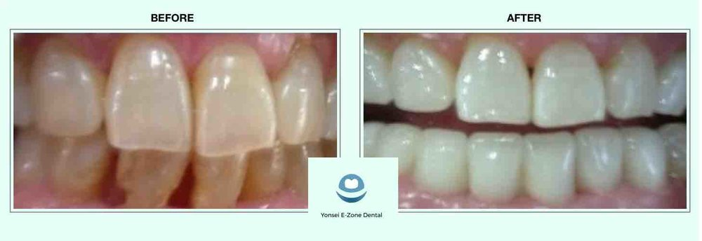Yonsei E-Zone Dental before and after teeth whitening