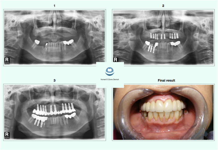 Yonsei E-Zone Dental before and after implants