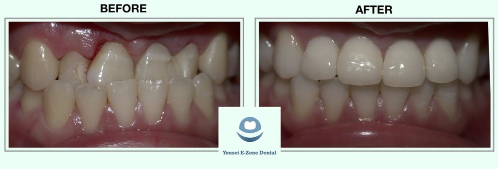 Yonsei_E-Zone_Dental_Before&After.jpg