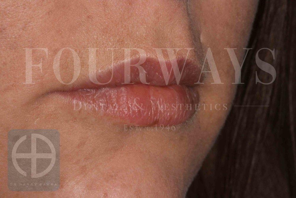 lip fillers after.jpg