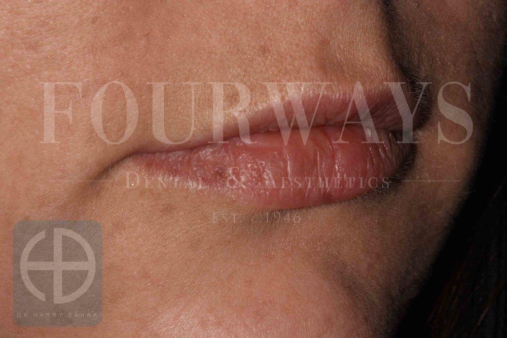 lip fillers before.jpg