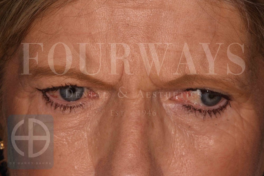 jh btx glabella before.jpg