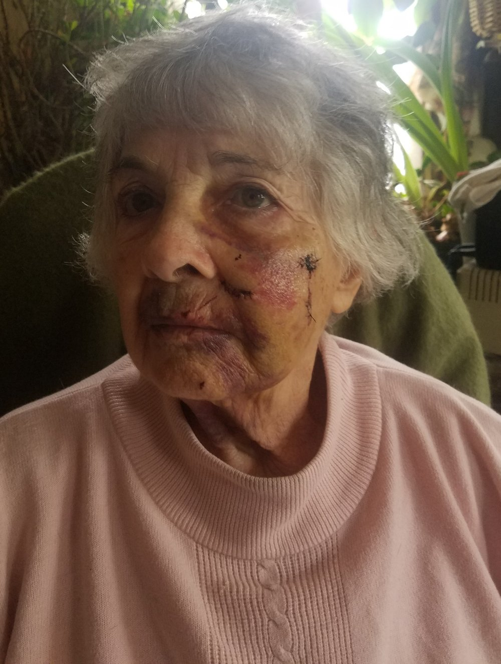 Mrs. Dabrowski is pictured here with some of the facial injuries she sustained after a bobcat attack. She sustained more injuries to her arms and back. (Photo courtesy Gene Dabrowski)