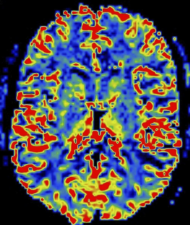 Brain scan_1.jpg