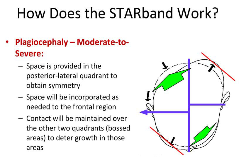 northeast-orthotics-and-prosthetics-how-does-starband-work-2.jpg