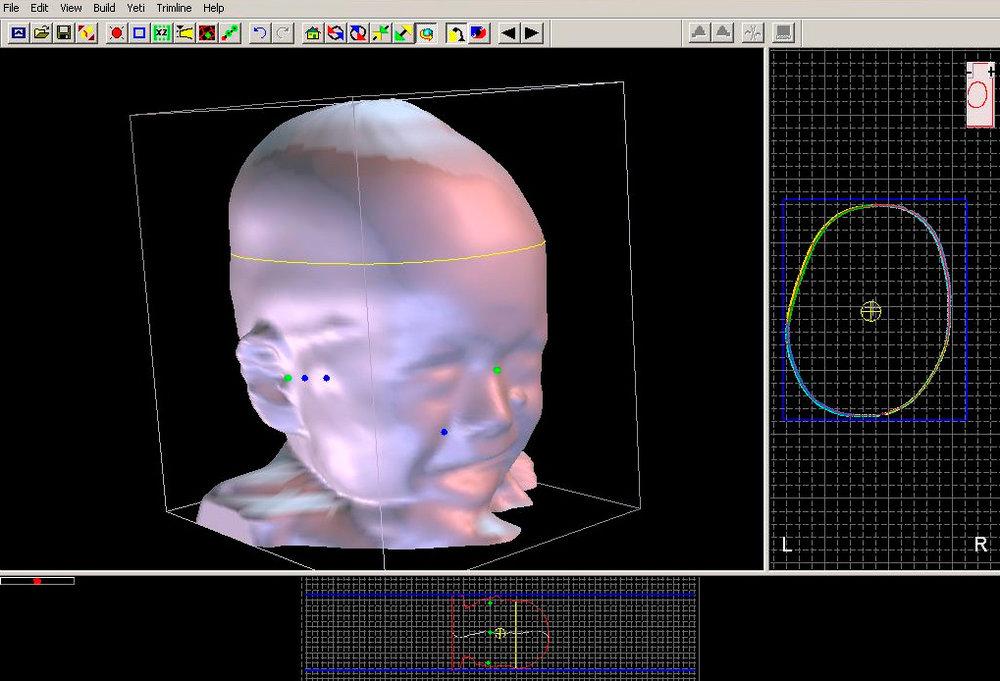 baby-scan-starband-starscanner.jpg
