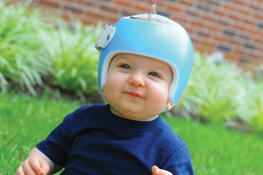northeast-orthotics-and-prosthetics-starband-child-helmet-5.jpg