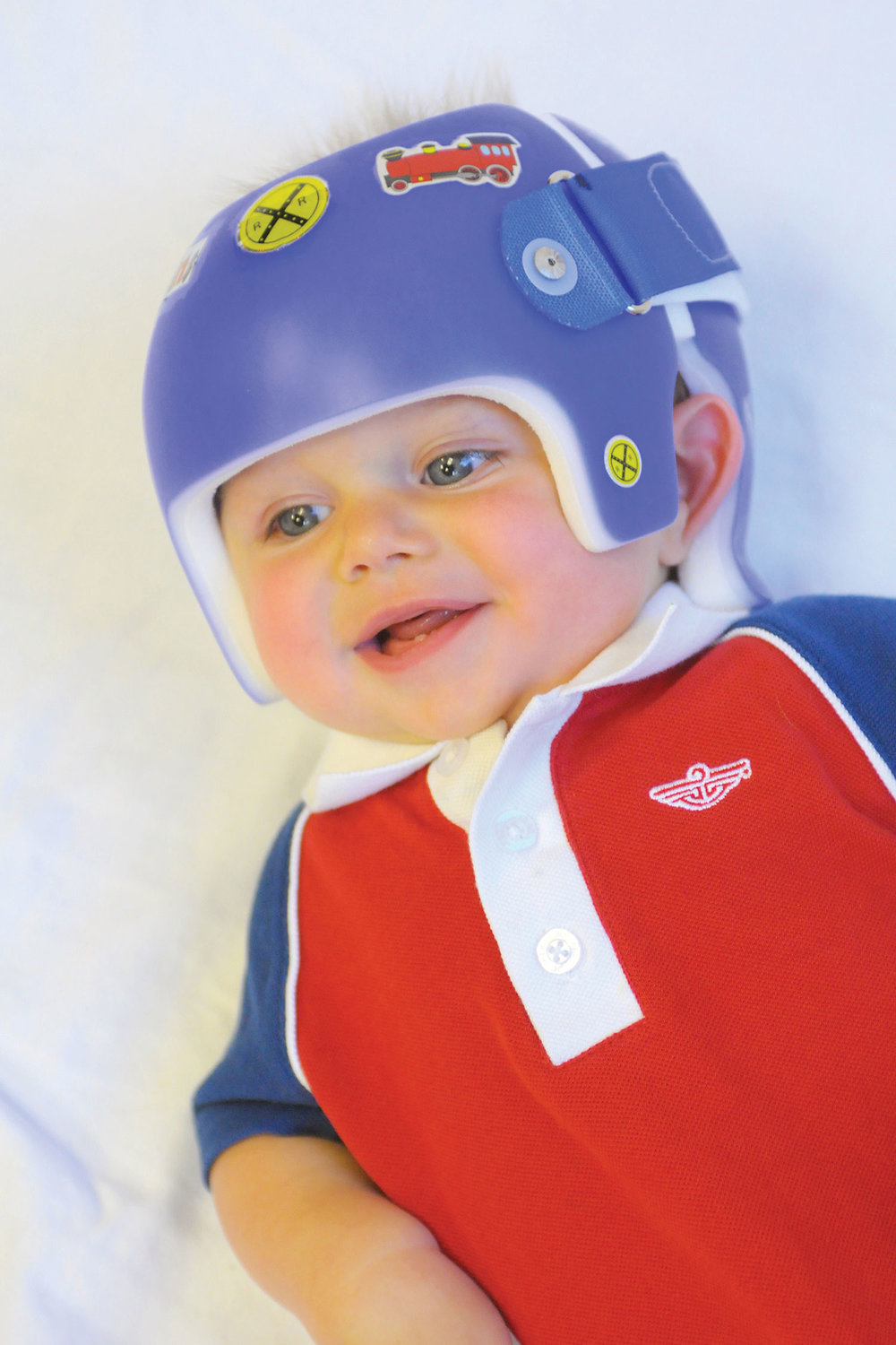 northeast-orthotics-and-prosthetics-starband-child-helmet-10.jpg