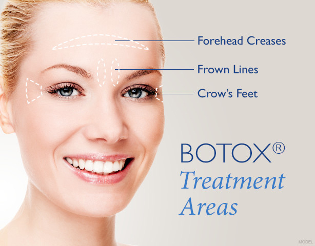 Botox Treatment Areas include: the Forehead Creases, Frown Lines and Crow's Feet.