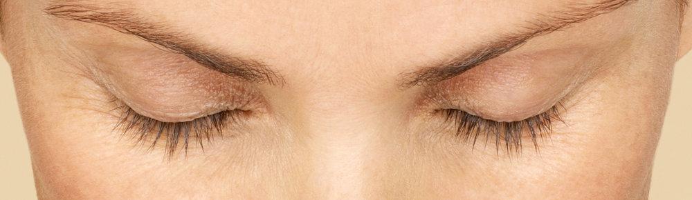 before-eye.jpg