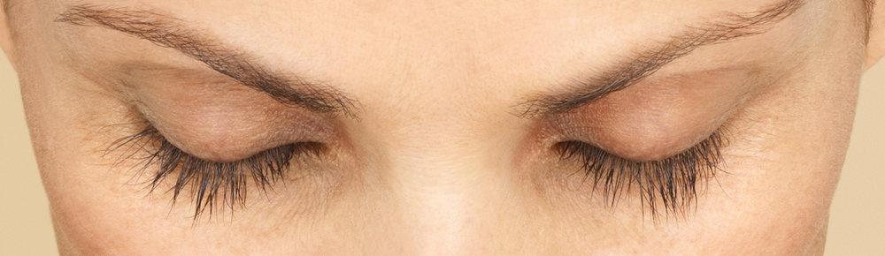 after-eye.jpg