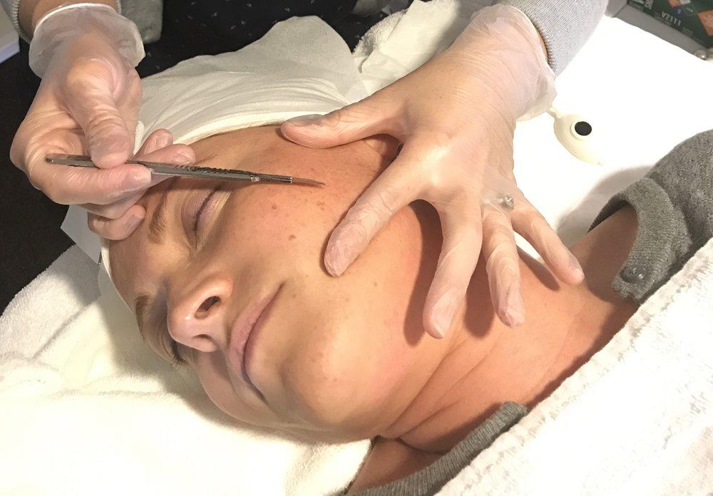 - Dermaplaning treatment at Coastal Aesthetics Medi-Spa.