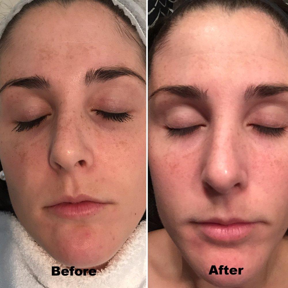Vitalize Peel - post one treatment for melasma (pregnancy mask)