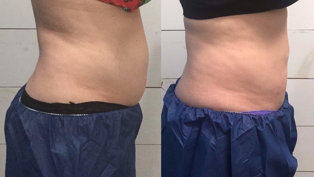 12 weeks post 2 treatments truSculpt iD