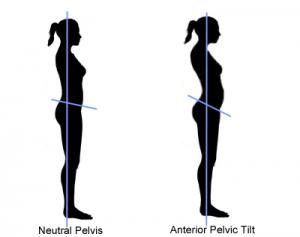 anterior pelvic tilt.png