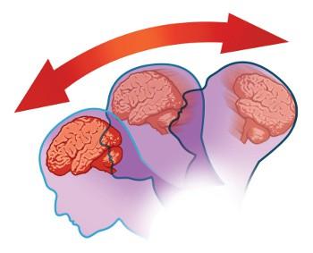 Concussion-diagram.jpg