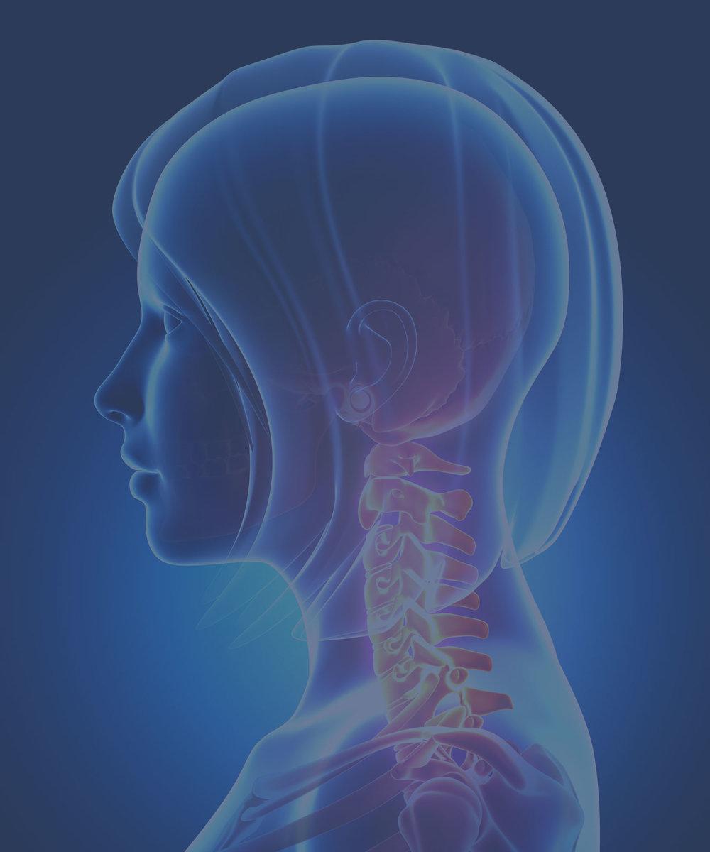Neck Pain, Headaches & Migraines | Causes & Treatment | Dr. Chris Homan