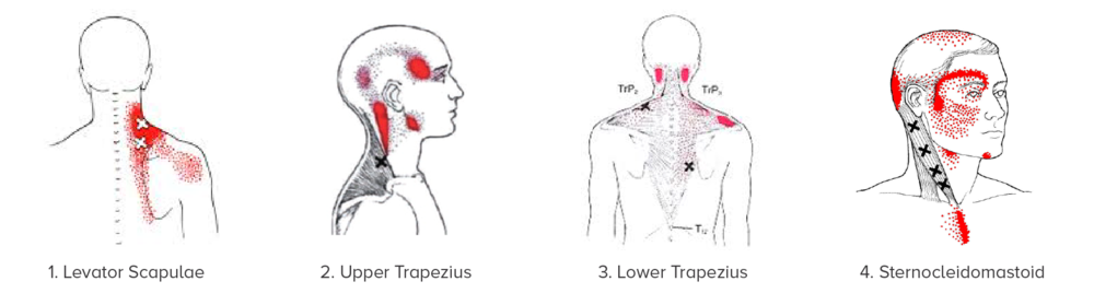 Can neck and back pain cause migraines