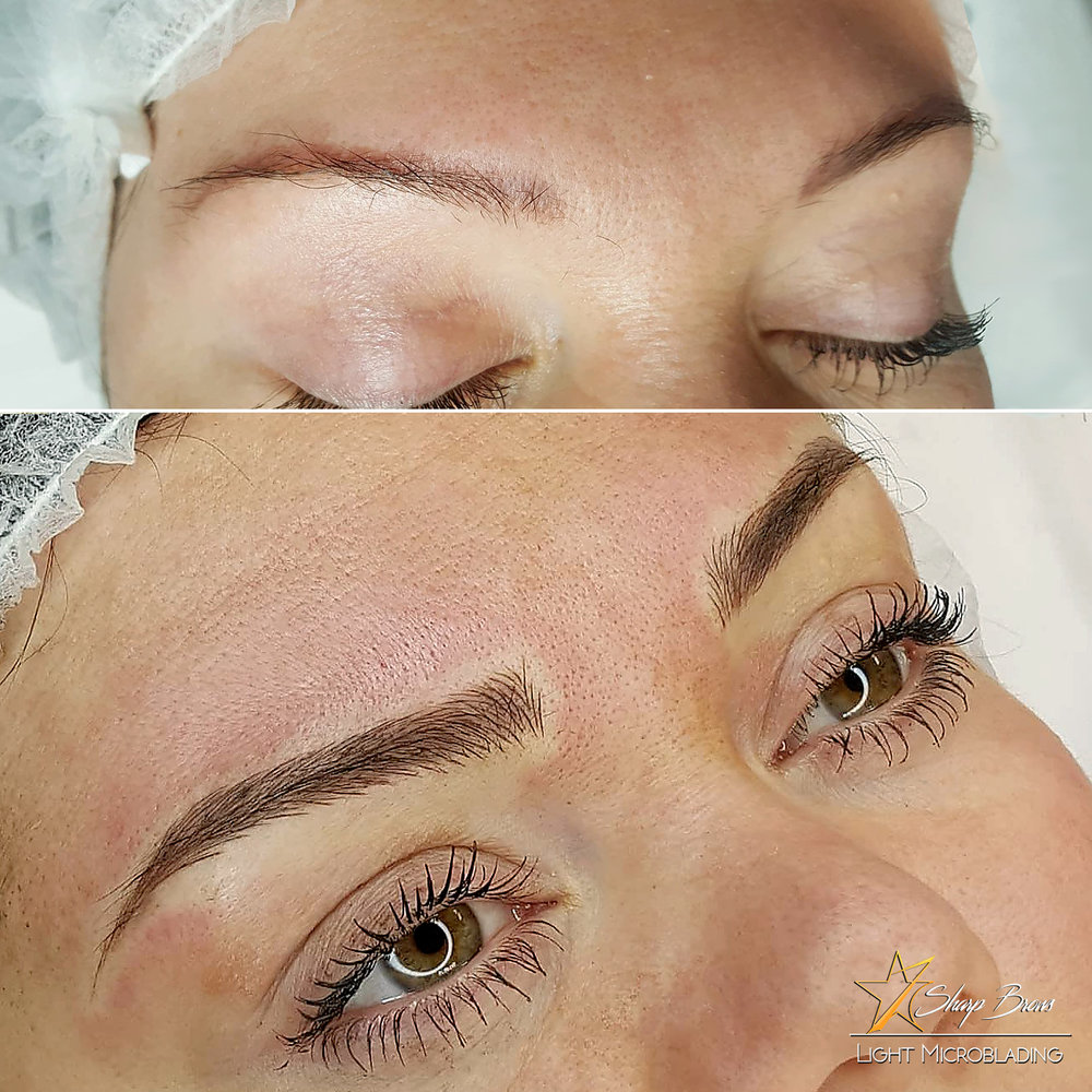 Light microblading. Sample of how old pigmentation is elegantly corrected using microblading.