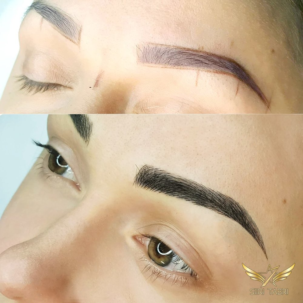 Light microblading. Here's just on sample of how a pretty bad pigmentation was fixed with light microblading and some shading.