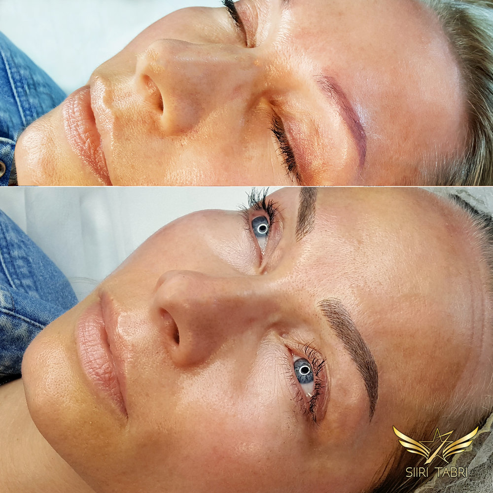 Light microblading - This was once again one of those cases where we had to start with an unwanted pigmentation. Thanks to Light microblading we were able to change everything.