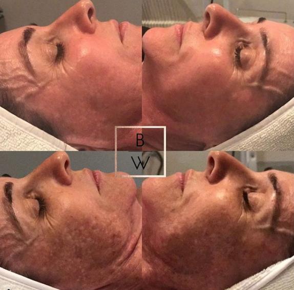 Depigmentation Treatment and 2x LEd Omnilux Treatments. -