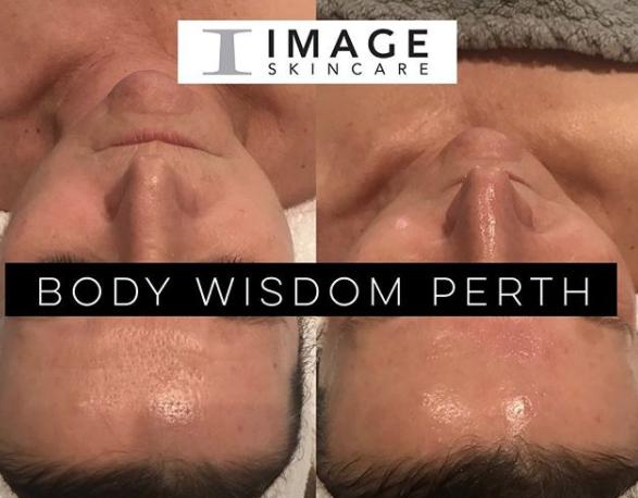 After 1 Image Skincare Wrinkle Lift Peel -
