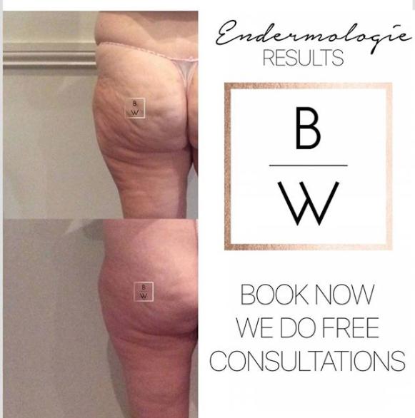 Alliance Endermologie Non Surgical Cellulite Treatment. After 8 treatments -