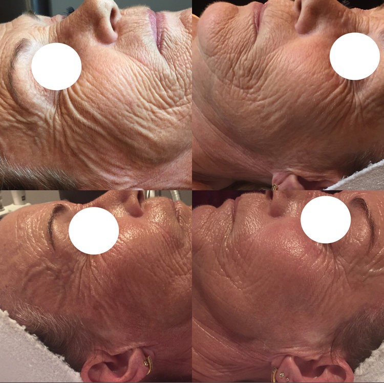 Advance Skin Needling - This is Wrinkle Revision using DermaPen CTI. Before and After 1 Treatment with 2 LED Omnilux Treatments for Post Healing