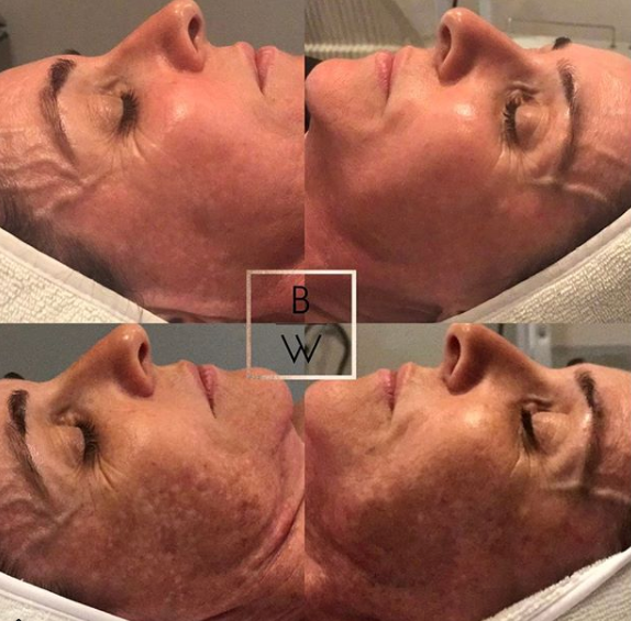 Chemical Peel - Cosmelan Depigmentaion Peel x 1 treatment