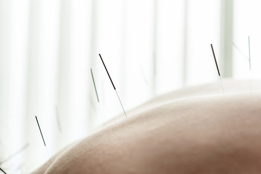 Acupuncture & Chinese Medicine -