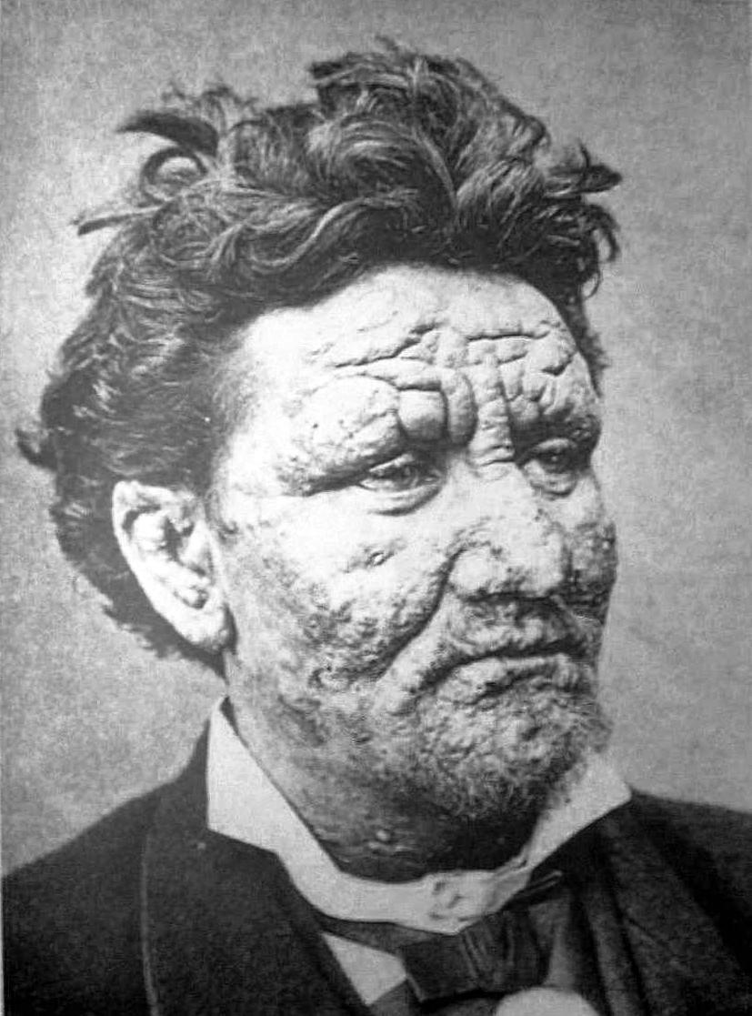 Leprosy.jpg