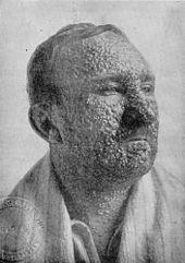 SmallpoxvictimIllinois1912.jpg