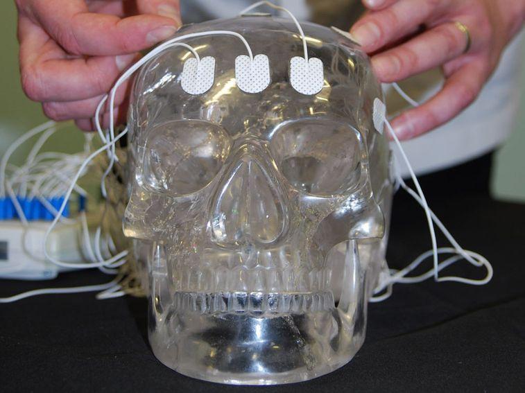 42279_crystal-skull-attached-to-eeg-machine_jfxeaqbh63vorhnrwcs4oomcjs2ptt7hevj74cagwi5qbj2htjuq_757x567.jpg