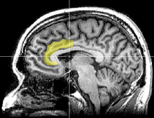 220px-MRI_anterior_cingulate.png