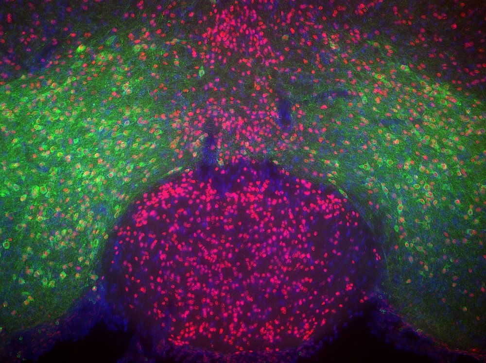 Midbrain micrograph showing VTA dopamine neurons (green), MeCP2 (red) and nuclei (blue)