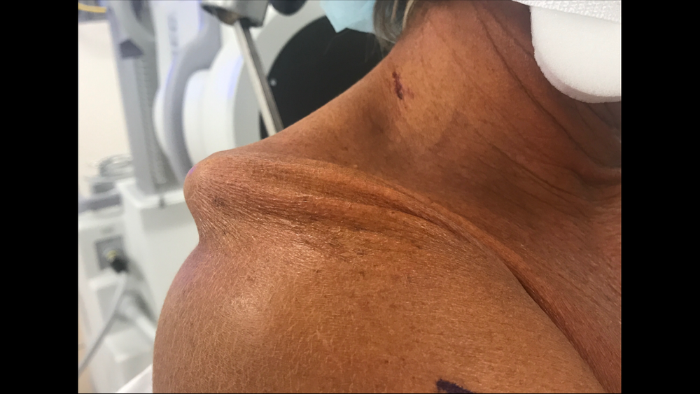2017 Right AC seperation (pre surgery) fixed by Dr. Peter Millett - Vail, CO