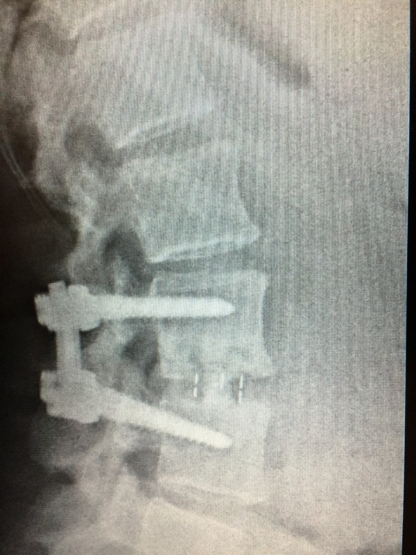 2015 L3-L4 Spinal fusion fixed by Dr, Scott Leary -  San Diego, CA