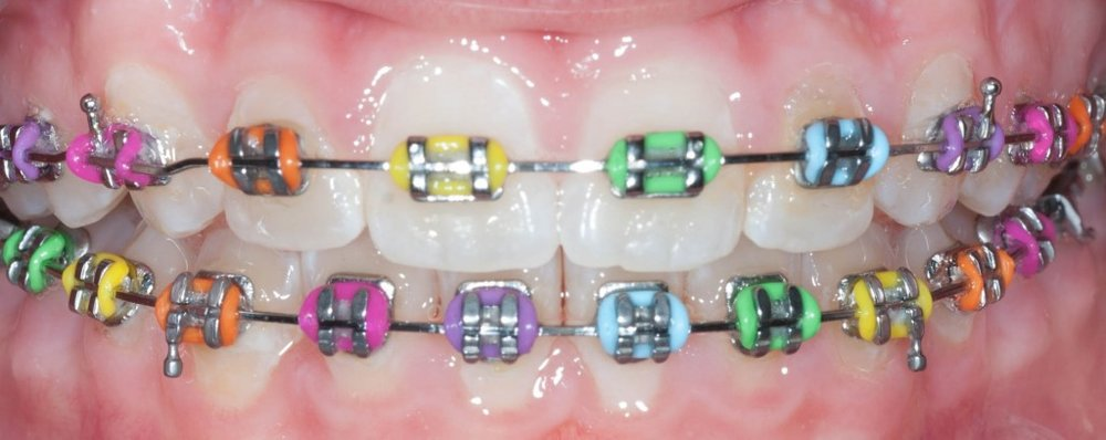 rainbow-braces-colors-1024x408.jpg