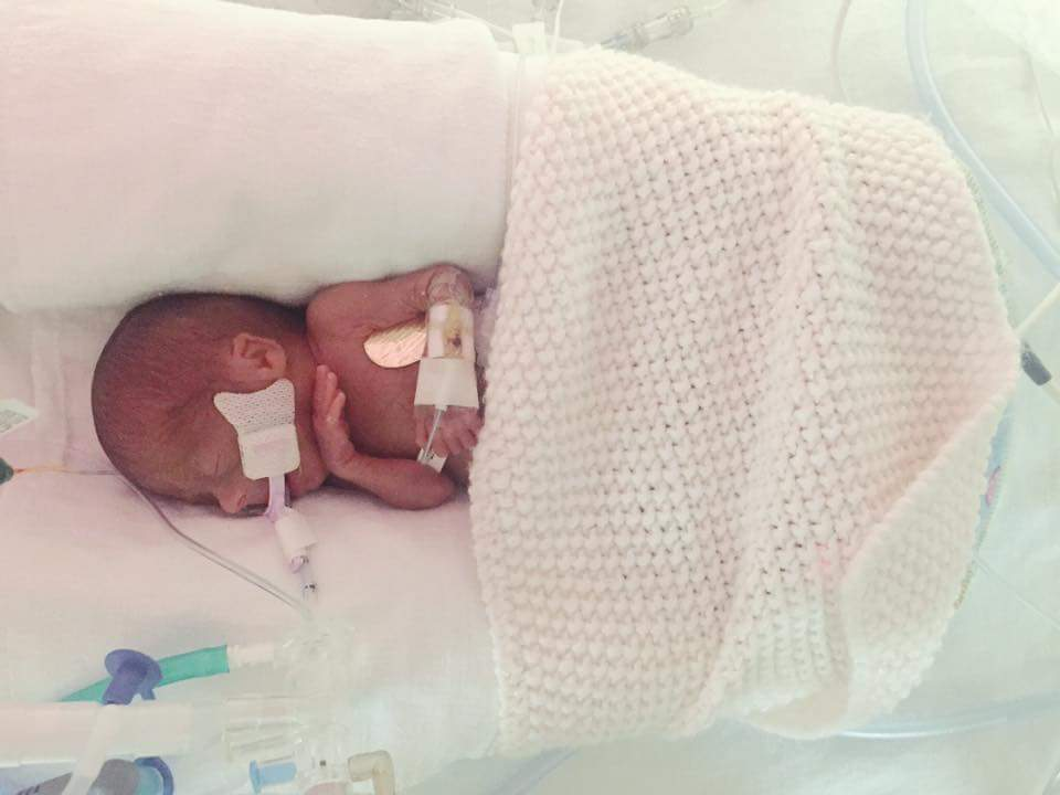 Hazel Durance, 23 weeker - On Hazel's fourth night of life we almost lost her. We were past the