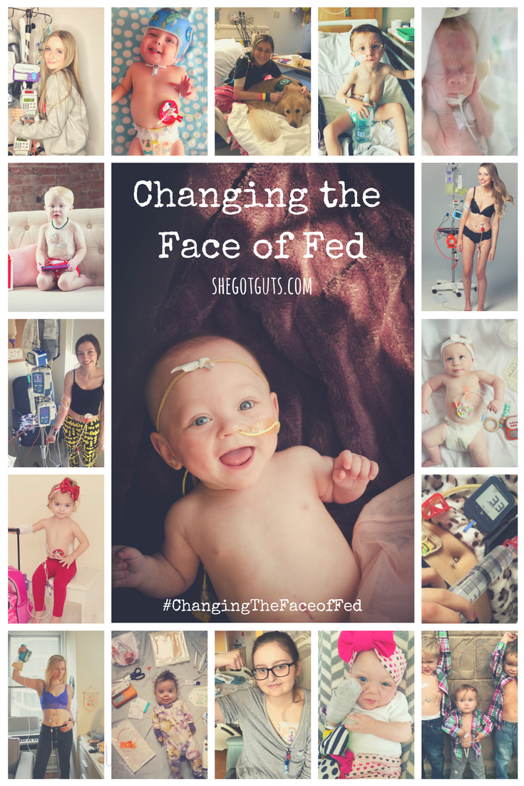changing the face of fed - feeding tube awareness - shegotguts.com